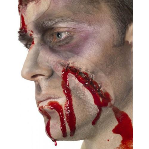 Cicatrice avec agraffes autoadhésive