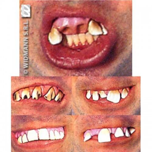 Dentier horrible